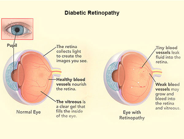 side angle of a normal eye and eye with retinopathy