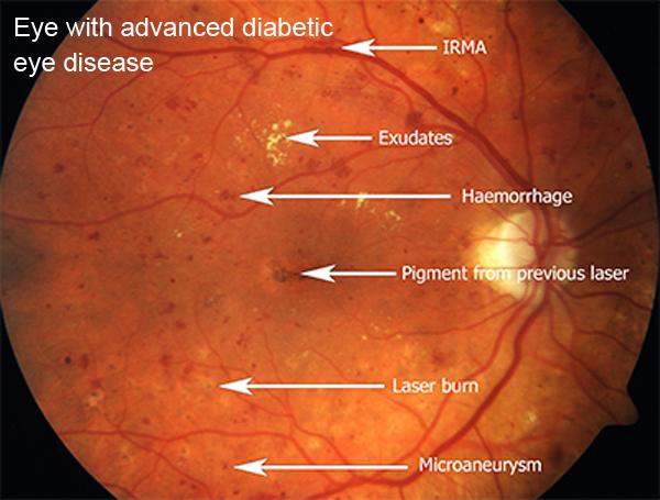 eye with advanced diabetic disease