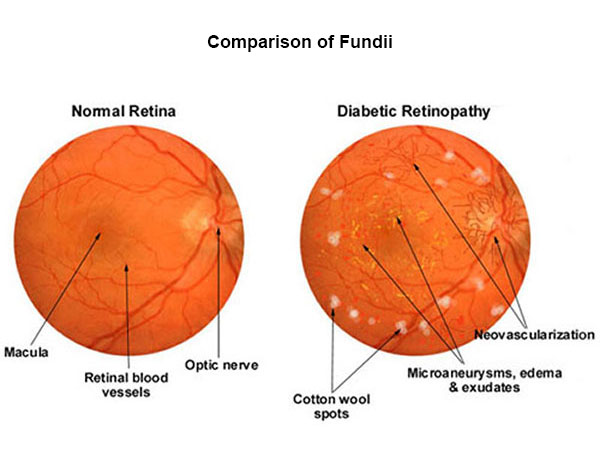 comparison of normal retina and diabetic retinopathy (fundus photography)