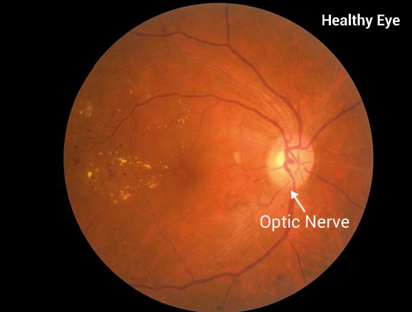 fundus photography showing optic nerve